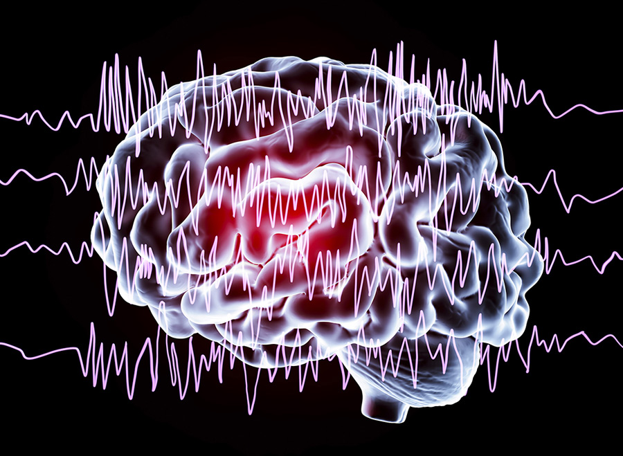 sudden onset of seizures in adults