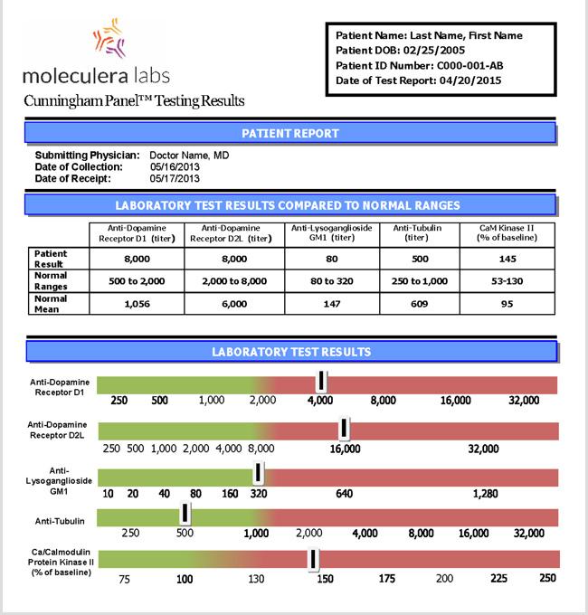 Order PANS and PANDAS Test