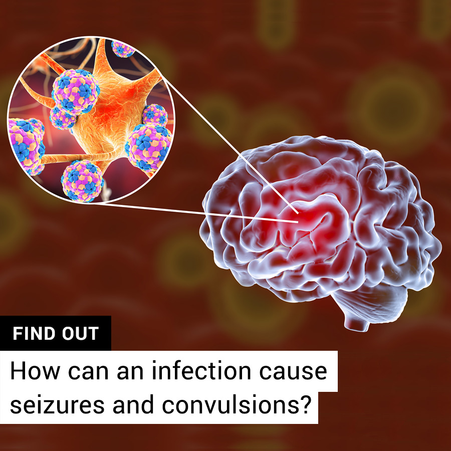 How can an infection cause seizures in adults with no history?